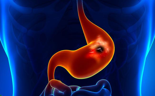 Vi khuẩn HP gây viêm loét dạ dày